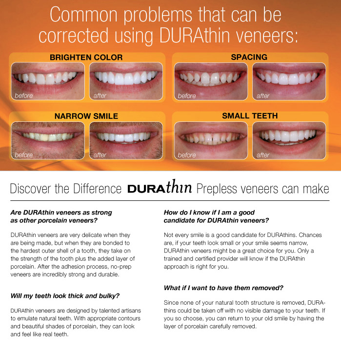 durathin veneers before and after