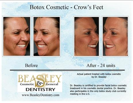 A before/after picture of crows feet treated by Huntsville Botox.