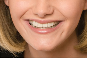 after photo of huntsville snap-on smile patient