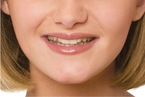 before photo of huntsville snap-on smile patient
