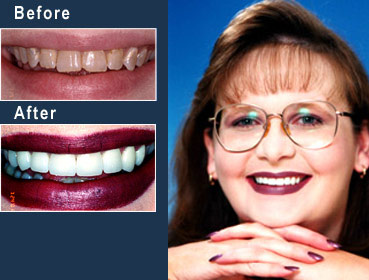 Alabama dentist - porcelain veneers