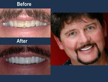 veneers for tetracycline stains
