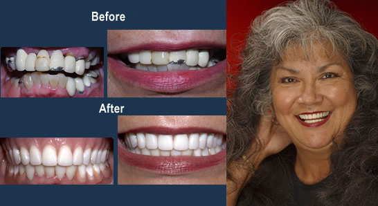Alabama Dentist - Porcelain Crowns and a Partial Denture