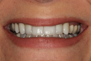 After Alabama porcelain crowns by Dr. Beasley