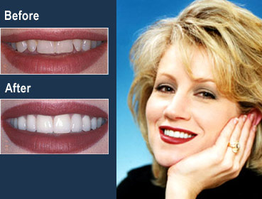 Alabama dentist porcelain veneers